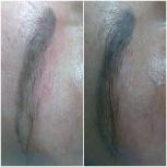 Деликатное удаление татуажа, татуировок. Ремувер, Нижний Новгород